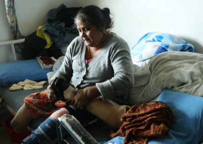 Female Patient with artificial limb at Ward - AR